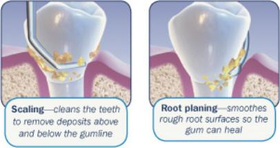Periodontal Maintenance Or A Regular Cleaning What S