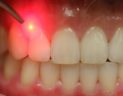 Periodontal Maintenance Frequency